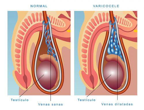 Varicocele: Qué es y cómo nos afecta